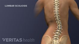 Posterior view of the adult spine showing lumbar scoliosis.