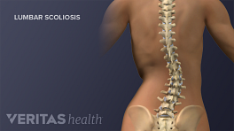 Medical illustration of lumbar scoliosis in the Adult Spine