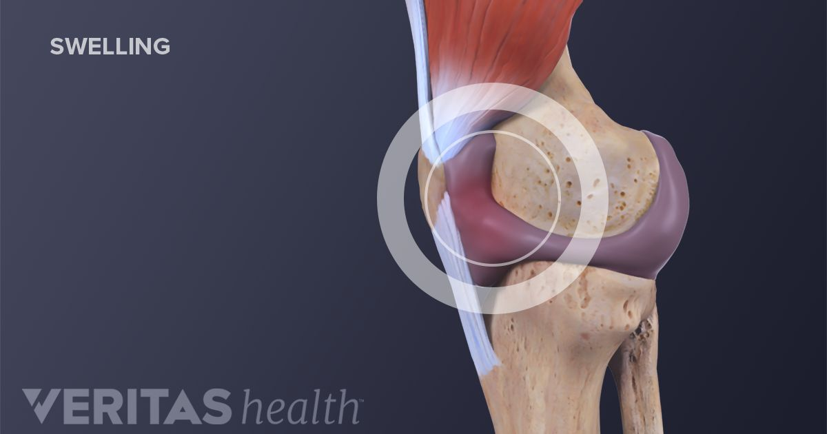 Detailed Knee Sprain Symptoms