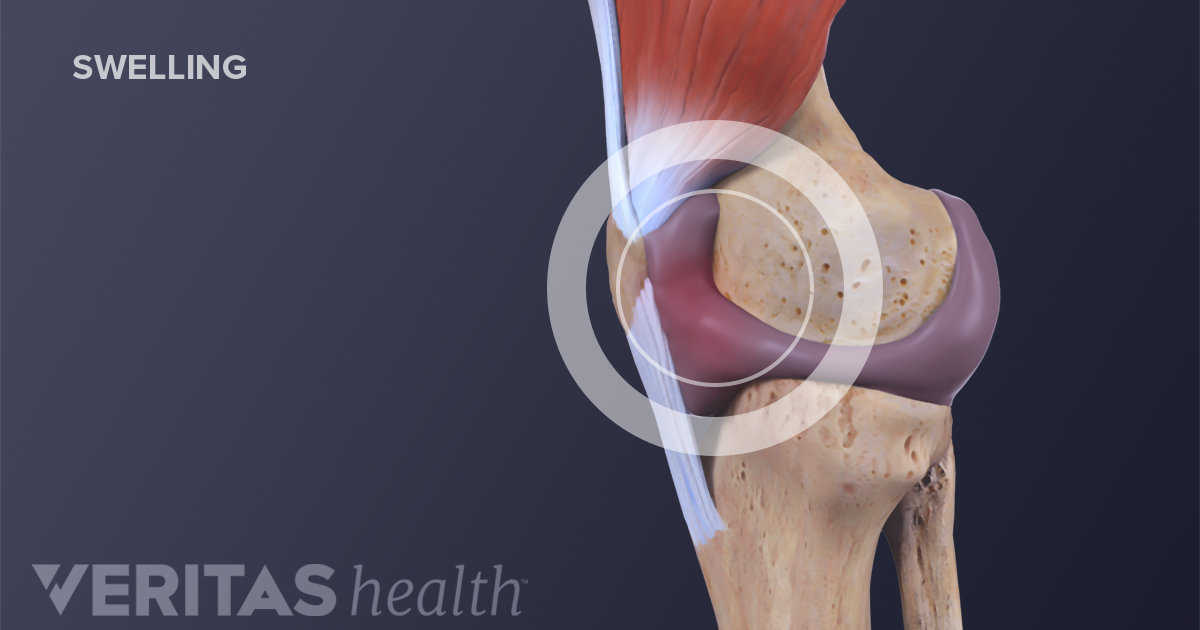 What causes a swollen knee water on the knee ccuart Images