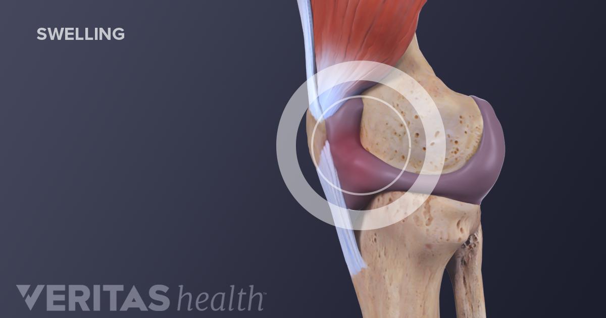 swollen knee water   knee