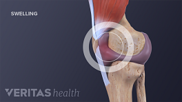Medical illustration of a swollen knee