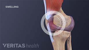 Medical illustration of swelling in the knee