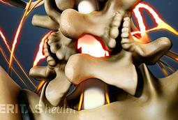Lumbar Laminectomy Surgery for Spinal Stenosis