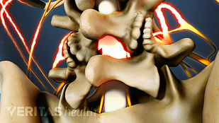 Spine vertebrae with spinal cord highlighted representing pain