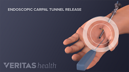 Endoscopic carpal tunnel release