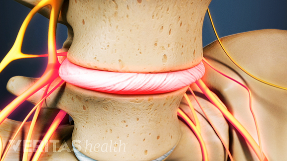 Anterior view of lumbar spine with a degenerated disc and nerve pain.