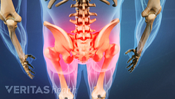 Medical illustration of the torso and upper legs. The hips and buttocks are highlighted in red indicating pain.