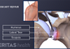 image of arthroscopic bankart repair for shoulder dislocation