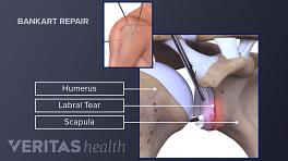 Arthroscopic bankart repair for shoulder dislocation