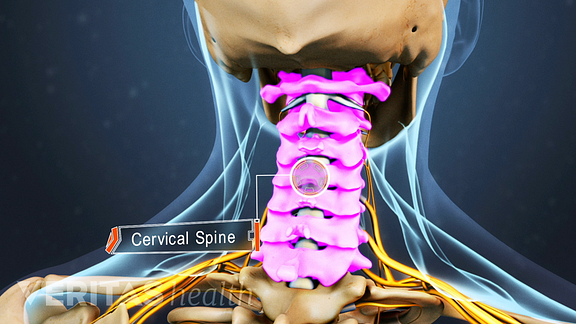 Illustration highlighting area of the cervical spine that can cause neck and arm pain