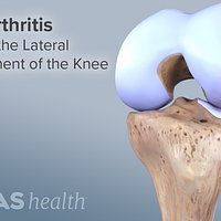 Osteoarthritis affecting the lateral compartment of the knee.