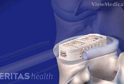 Lateral Lumbar Interbody Fusion (XLIF) Video