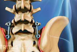 Spinal Fusion for Scoliosis