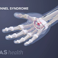 Palmar, skeletal view of the hand showing carpal tunnel syndrome at the base of the palm.