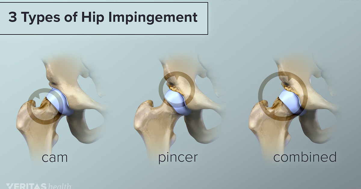 Pain Due To Hip Impingement Femoroacetabular Impingement