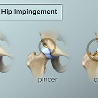 The three types of hip impingement: pincer, cam, and combined.