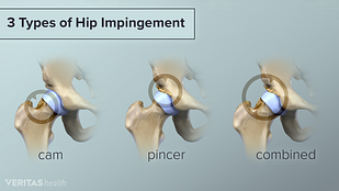 Types of hip impingement include cam, pincer, and combined.