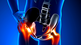 Symptoms of hip labral tears include hip pain, locking, and instability.