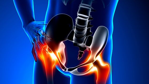 How Is Hip Pain Diagnosed?