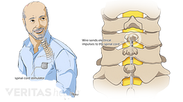 Implanted spinal cord stimulator and the wire sends electrical impulses to the spinal cord.