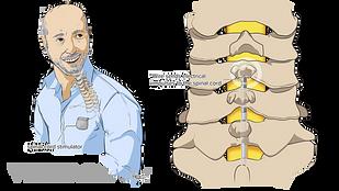 植入脊髓刺激器的图示