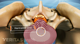 Superior view of a herniated disc.