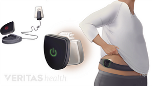 Medical illustration of battery for rechargeable spinal cord stimulator being charged