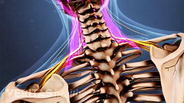 Neck pain symptoms
