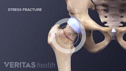 Medical illustration of a hip stress fracture