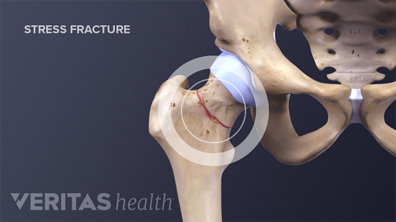 Medical illustration of a hip stress fracture