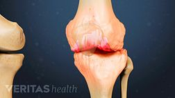 Medical illustration of a knee joint showing signs of osteoarthritis
