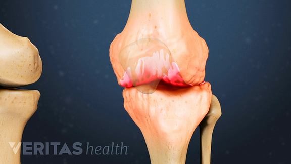 Medical illustration of osteophytes in the knee causing pain