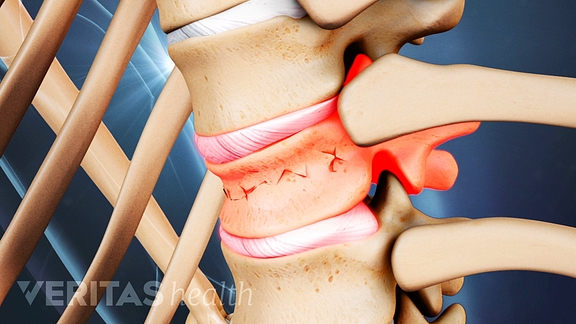 Close up medical illustration of a vertebrae with a compression fracture. The disc above the fracture is highlighted in red to indicate pain