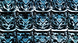 MRI of the cervical spine and the vertebral discs in different views.
