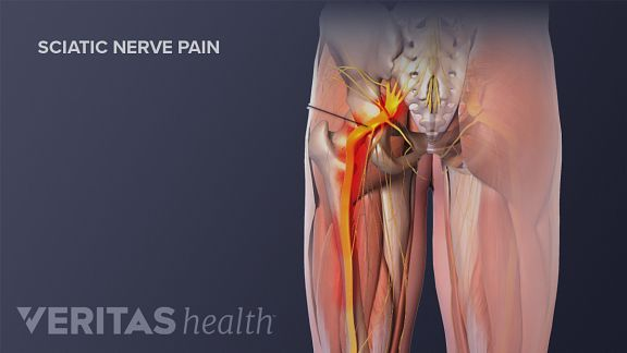 How massage can ease sciatic pain solutioingenieria Images