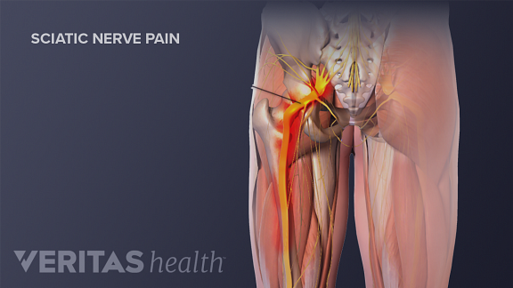 Medical illustration showing the sciatic nerve down the leg