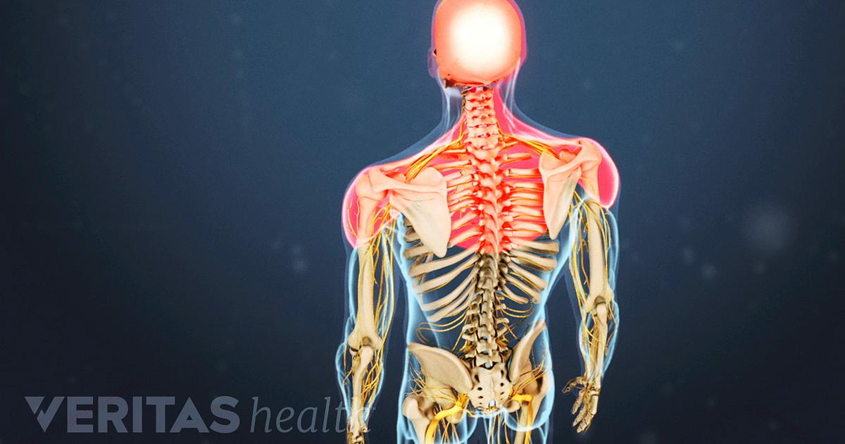 Cervical Osteoarthritis Symptoms