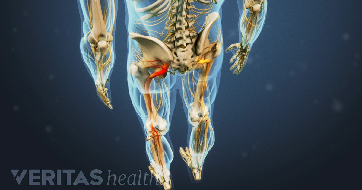 Las piernas causa de punzante en dolor