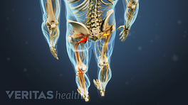 Posterior view of the lower body showing sciatic pain in the legs.
