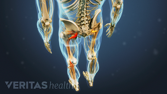 Medical illustration showing radiating pain down the leg in the sciatic nerve