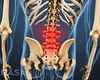 Posterior view of the lower back highlighting pain in the lumbar spine.
