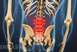 low back pain and stiffness from osteoarthritis