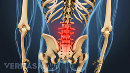Posterior view of a skeleton with the lower spine highlighted in red to indicate pain