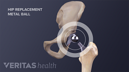 Illustration of a hip replacement, highlighting the metal ball that goes into the hip socket
