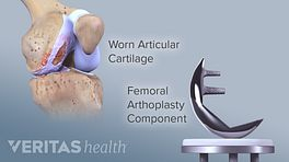 Medical illustration of the knee showing worn articular cartilage and the femoral arthroplasty replacement component