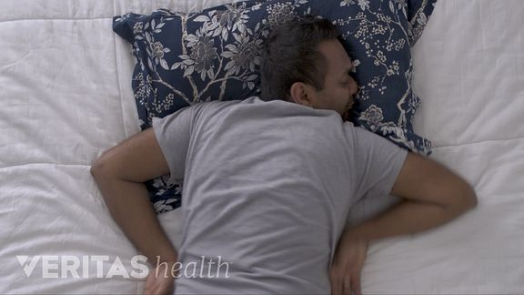 Man sleeping on his stomach in an awkward position