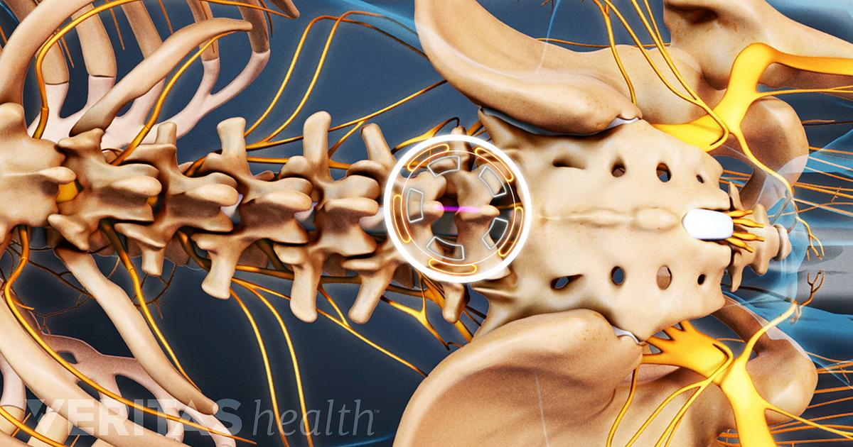 Orthopedic Surgeon vs. Neurosurgeon for Spine Surgery