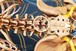 A lumbar microdiscectomy is performed through a small incision in the midline of the low back.