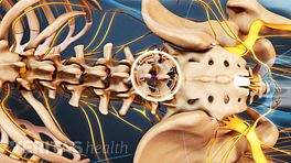 Medical illustration of the lumbar spine showing the location of a microdiscetomy